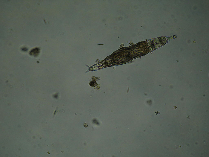 This unidentified freshwater rotifer serves as a good example of an elongate body form. (Photo by Gabriel Belfort Núñez.)