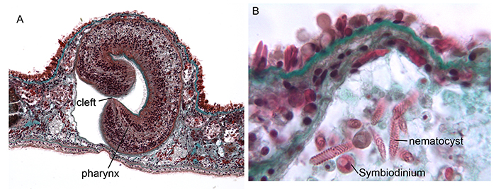 Figure 4. Cross sections through an AEFW showing (a) the cleft tubular pharynx, (b) Acropora nematocysts and zooxanthellae in the main tract of the AEFW gut.